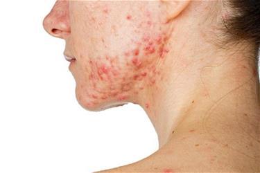 Can antibiotics replace skincare to treat acne?
