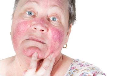 Rosacea can be treated successfully - here