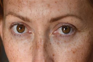 Ageing Around the Eyes