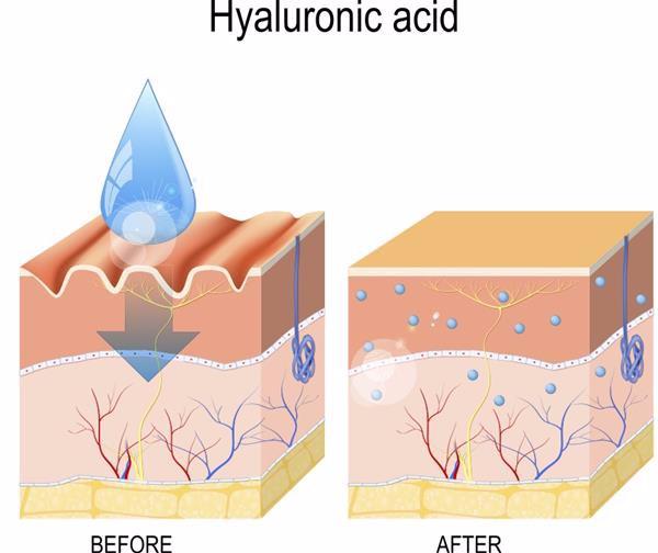 hyaluroic acid untuk repair skin barrier